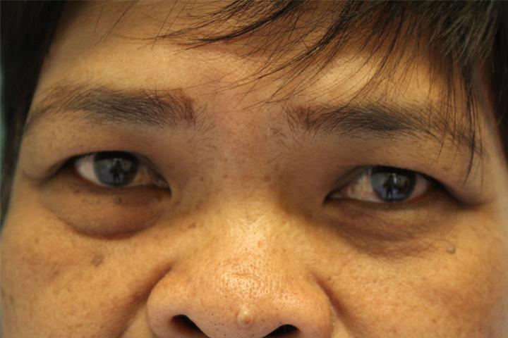 cataract-before